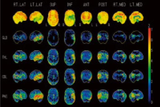 脳のPET/CT検査