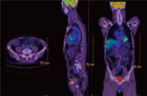 がんのPET/CT検査